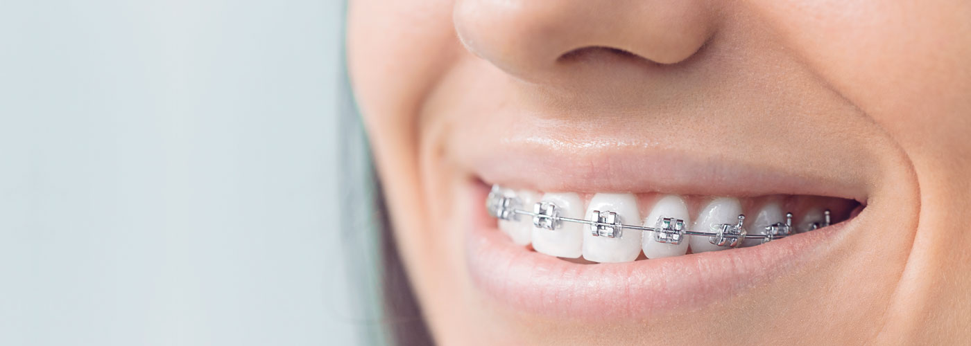 Prise en charge orthodontique des séquelles de fentes faciales